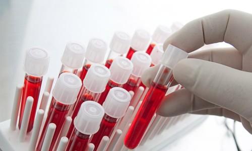 Анализ крови на железодефицитную анемию