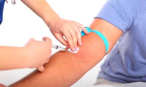 Сдача анализа крови на тестостерон