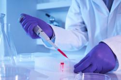 Исследование крови на хламидиоз