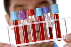 Биохимический тест крови на гепатит