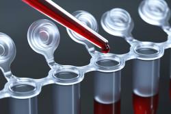 Анализ крови на проверку печени