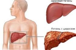 Цирроз печени - причина низкого уровня белка