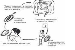 Схема заражения энтеробиозом