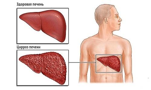 Диагностика заболевания гепатит С