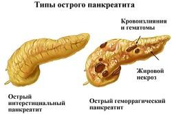 Панкреатит - причина повышения РЭА