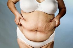 Ожирение как причина МАУ