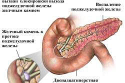 Основные причины панкреатита