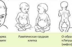 Симптомы рахита у грудничков