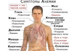 Анемия - причина анизоцитоза