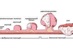 Рак - причина повышения РЭА