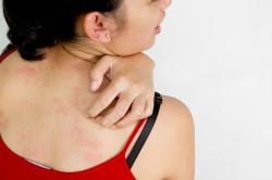 Появление высыпаний при аллергии