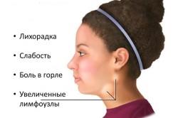 Симптомы Эпштейна-Барра