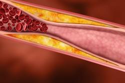 Какое эффективное средство для понижения холестерина