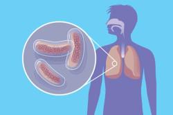 Туберкулез - причина повышенных нейтрофилов