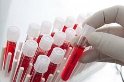 Исследование биохимического анализа крови на гепатит С