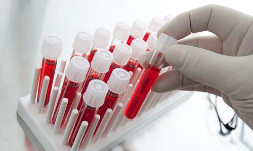 Проведение анализа крови на свертываемость