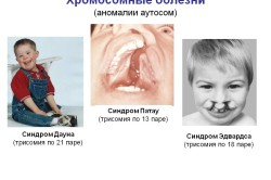 Хромосомные болезн