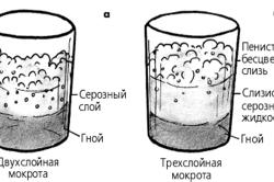 Схема двухслойной и трехслойной мокроты