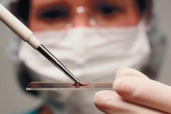 Анализ крови на выявление хеликобактер пилори