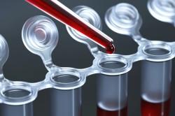 Диагностика крови гепатит В