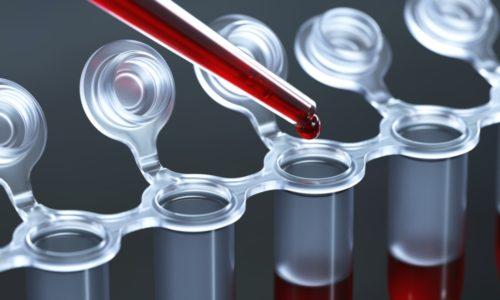 Лабораторное обнаружение пойкилоцитоза в крови