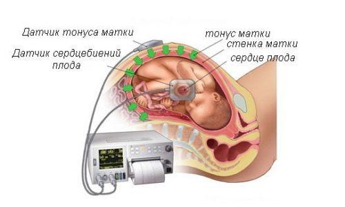 Анализ крови афп у беременных