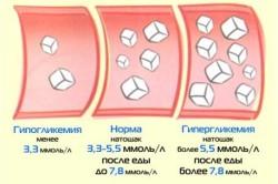 Норма и отклонения сахара в крови