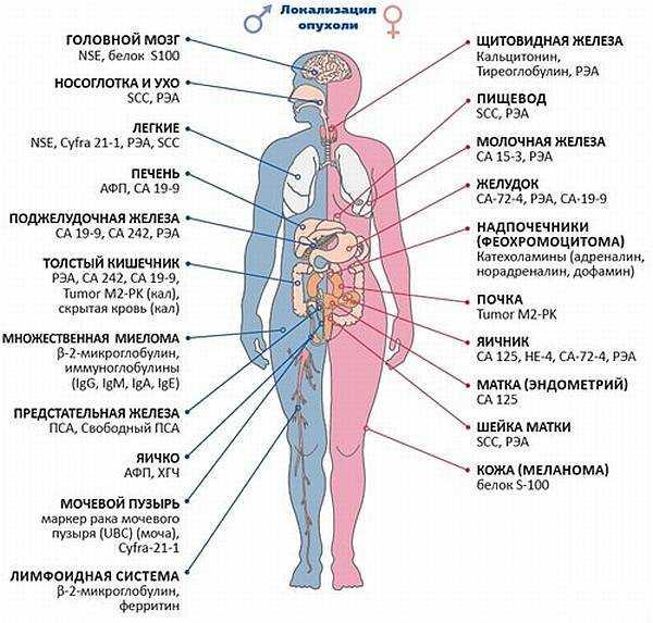 Мочекаменная болезнь при аденоме простаты