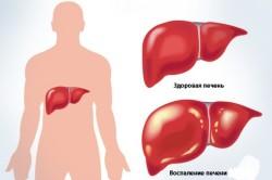 Воспаление печени в результате развития аутоиммунных процессов
