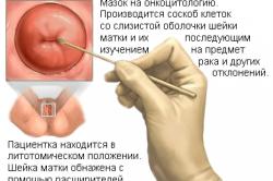Принцип мазка на инфекции