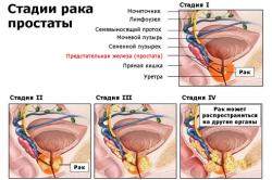 Стадии рака предстательной железы