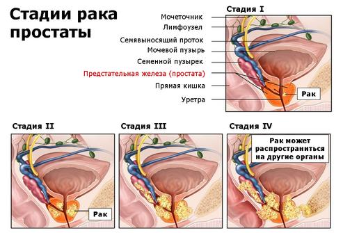 Гозерелин отзывы при раке предстательной железы
