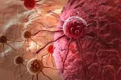 Повышение уровня лейкоцитов при раковых образованиях