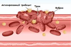 Схема свертываемости крови