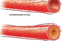 Регулярное исследование крови на свертываемость при атеросклерозе сосудов