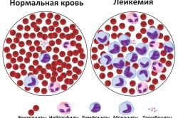 Кровь при лейкозе