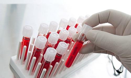 Необходимость сдачи анализов в лабораторию