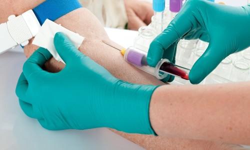 Забор крови для анализа РМП