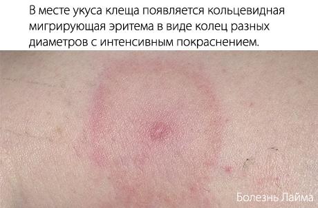 Сдать анализы крови на антитела боррелиоза Справка 001-ГС у Чертановская