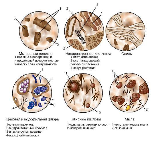 Анализ кала (Копрограмма): виды, что показывает, подготовка