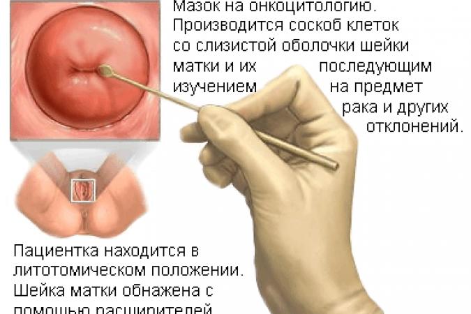 Анализ мазка по гинекологии и его расшифровка
